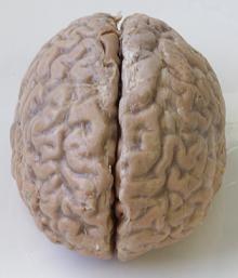 Oligofrenia
