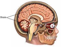 Parálisis cerebral
