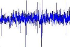 Definición de frecuencia - Qué es, Significado y Concepto