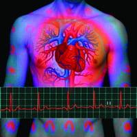 Vascular