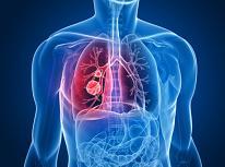 Pulmonía