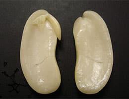 Embrión