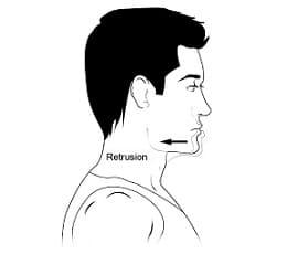 Retrusión