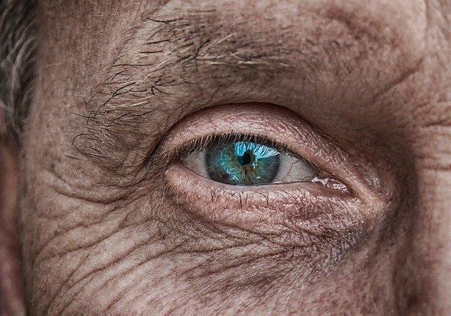 Periclitar anciano arrugas